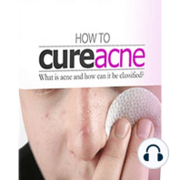 How To Cure Acne: A comprehensive Guide on the Various Types of Acne and Treatments
