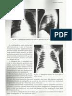 Timus - Radiologie Pediatrica