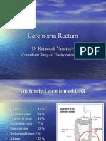 Carcinoma Rectum