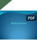 Biology Presentation (Malnutrition)