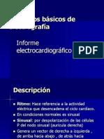 Clase 2 Informe de ECG