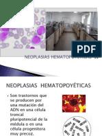 NEOPLASIAS HEMATOPOYETICAS presentacion