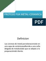 Protesis Fija Metal-ceramica