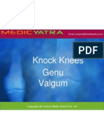 Genu Valgum Treatment & Surgery