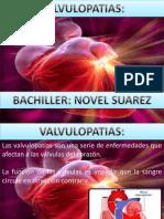 Copia de Valvulopatias2