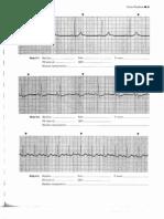 Modele de EKG