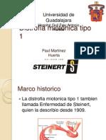 Distrofia Miotonica de Steinert