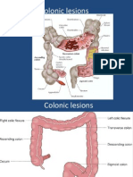 Colonic Lesions