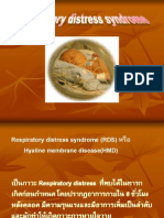 RDS in Pediatrics