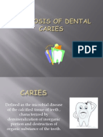 Diagnosis of Dental Caries
