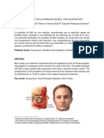 Art Paralisis Facial Unilateral