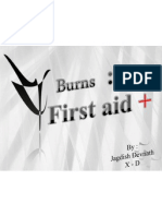 First  Aid On Burns