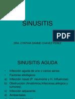 SINUCITIS