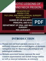 Melanotic Lesions of Head and Neck Region
