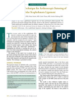 An All-Inside Technique for Arthroscopic Suturing of the Volar Scapholunate Ligament