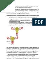 histerectomía abdominal