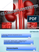 Glomerulonefritis Final