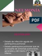 Bronco Neumonia