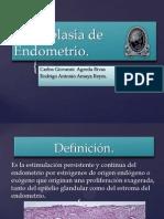 Hiperplasia de Endometrio
