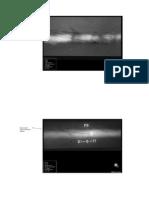 Radiography Interpretations