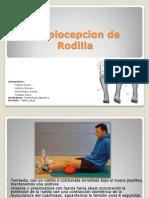 Propiocepcion de Rodilla