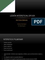 Lesión intersticial difusa