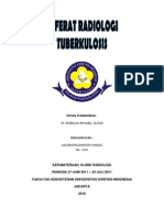 TUBERKULOSIS RADIOLOGI
