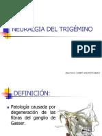 Neuralgia Del Trigemino