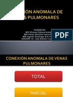 CONEXIÓN ANOMALA DE VENAS PULMONARES (CAVP)