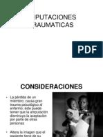 Amputaciones Traumaticas