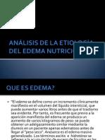 ANÁLISIS DE LA ETIOLOGÍA DEL EDEMA NUTRICIONAL
