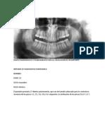 Mapeo Radiografico y Planeamiento Para La Colocacion de Un Implante