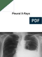Pleural X rays