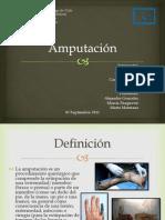amputación