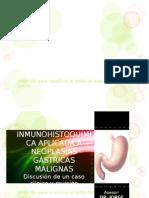 Inmunohistoquimica Aplicada a Neoplasias Gastricas Malignas.