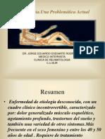 1fibromialgia