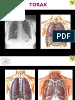 3 Pulmon Anatomia