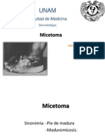 Micetoma