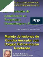 Manejo de lesiones de Concha Auricular con Colgajo Retroauricular Tunelizado