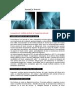 Ejercicio de Diagnóstico Diferencial N°16 (R)