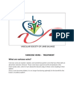 Varicose Veins treatment by VSLS