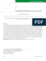 Infección por micobacterias del sistema nervioso central