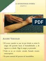 Fistula Arteriovenosa Interna