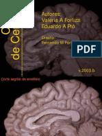 Cortes de Cerebro