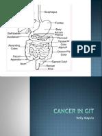 Cancer in GIT