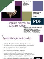 Caries Dental en El Adulto Mayor1