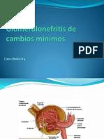 GLOMERULONEFRITIISSS