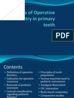 cavity preparation in primary teeth