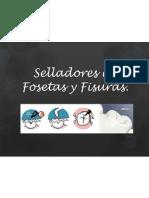 Selladores de Fosetas y Fisuras.