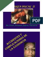 3 Complicaciones de La Exodoncia